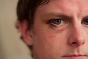 Alsco - Treating Eye Injuries